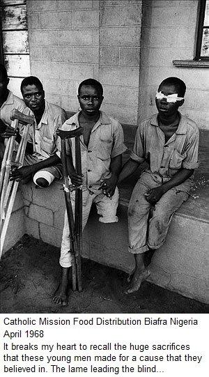 Biafra kids suffering from Kwashiokor during the Civil war